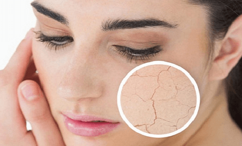 Ξηρό και Αφυδατωμένο Δέρμα(1)